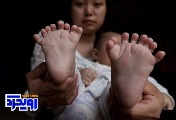 نوزادی در چین با ۳۱ انگشت به دنیا آمد