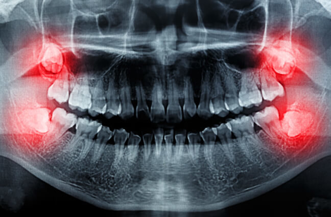 چند توصیه برای تسریع بهبودی پس از جراحی دندان عقل