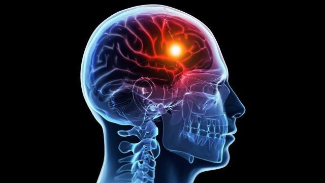در هر پنج دقیقه یک ایرانی سکته مغزی میکند