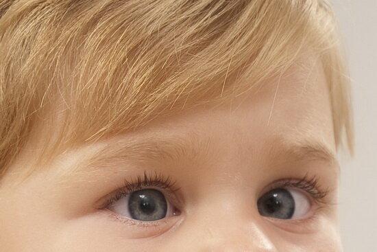 تنبلی چشم؛ رایجترین دلیل نارسایی بینایی در کودکان